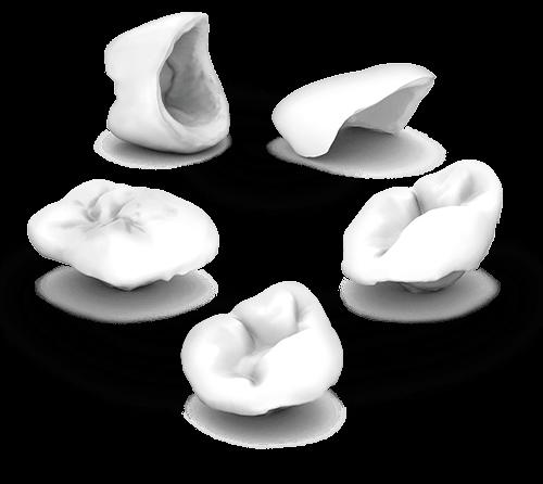 ips-e-max-cad-sistema-carillas